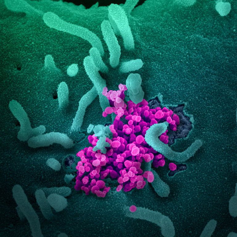 UF researchers scour coronavirus studies for clues to a future shared with COVID-19